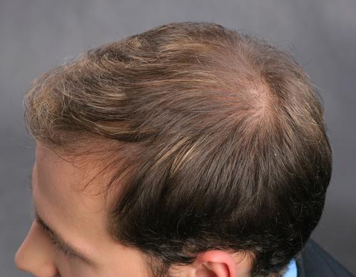 Richtige Anwendung Bei Kurzen Dünnen Haaren Flache Frisur